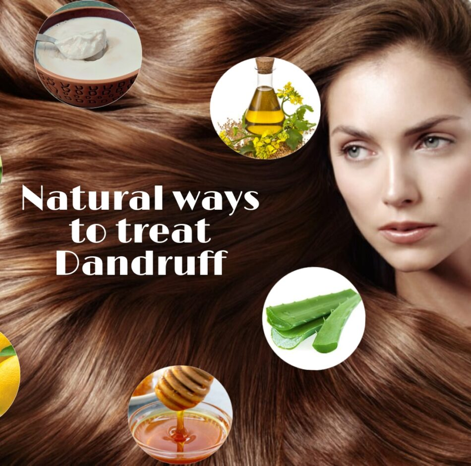 Say Bye To Your Dandruff with Natural Ways